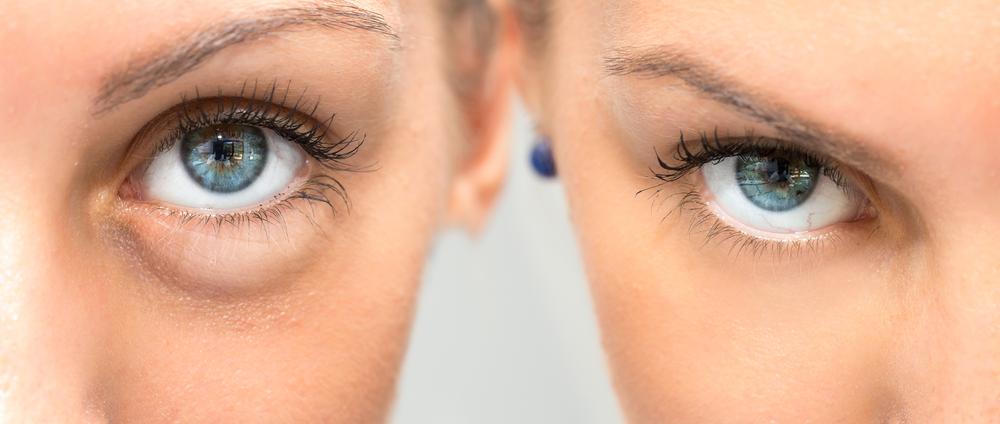 10 Best Ways To Get Rid of Bags Under Eyes